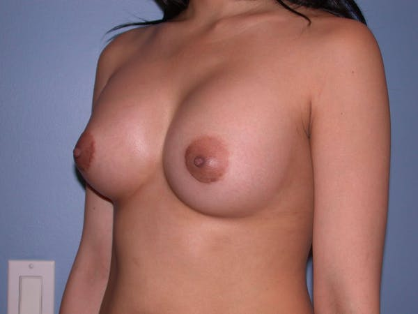 Breast Augmentation Gallery - Patient 4757564 - Image 8
