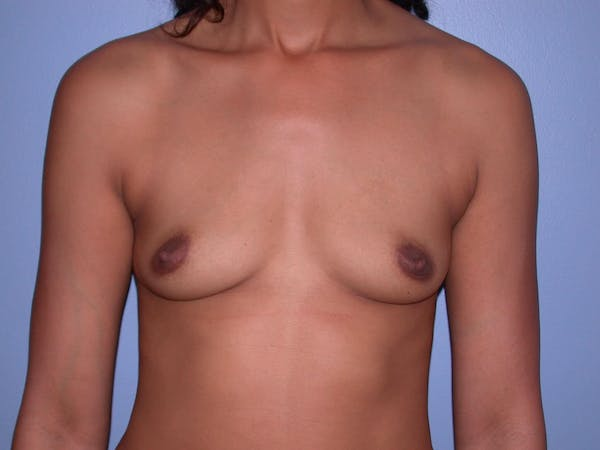 Breast Augmentation Gallery - Patient 4757569 - Image 1