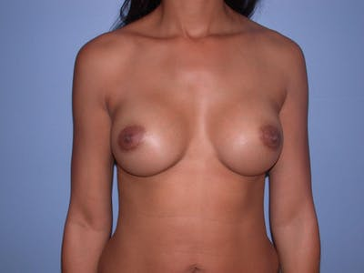 Breast Augmentation Gallery - Patient 4757569 - Image 2