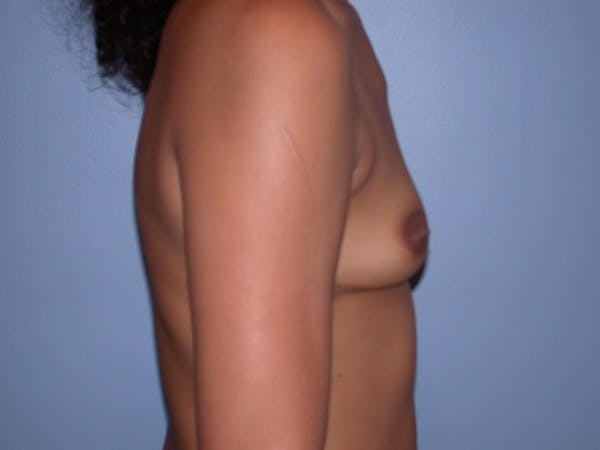 Breast Augmentation Gallery - Patient 4757569 - Image 3