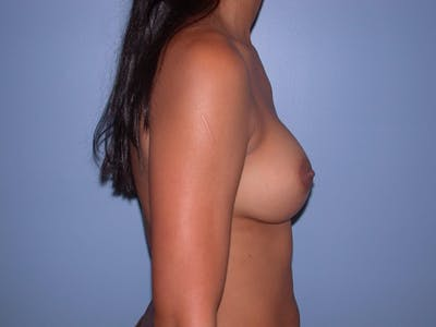 Breast Augmentation Gallery - Patient 4757569 - Image 4