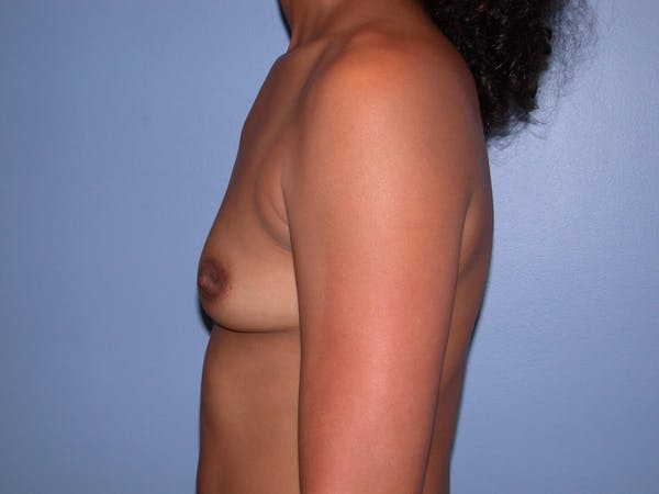 Breast Augmentation Gallery - Patient 4757569 - Image 5