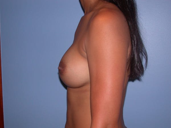 Breast Augmentation Gallery - Patient 4757569 - Image 6
