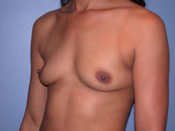 Breast Augmentation Gallery - Patient 4757569 - Image 7