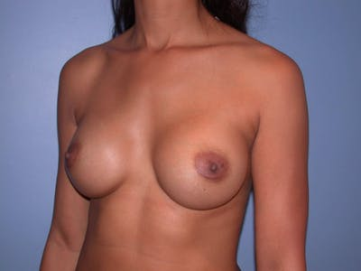 Breast Augmentation Gallery - Patient 4757569 - Image 8