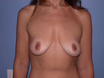 Breast Augmentation Gallery - Patient 4757577 - Image 36