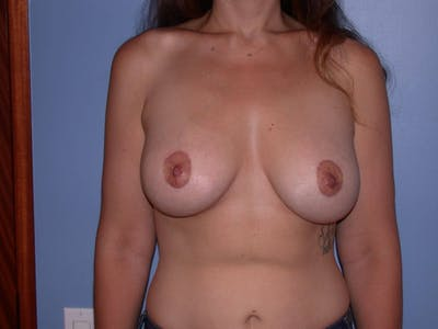 Breast Augmentation Gallery - Patient 4757577 - Image 2