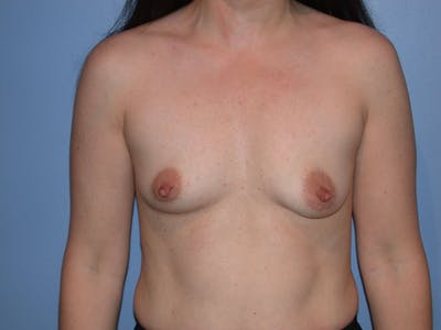 Breast Augmentation Gallery - Patient 4757581 - Image 37