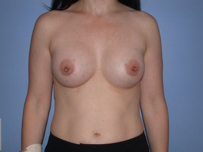 Breast Augmentation Gallery - Patient 4757581 - Image 2