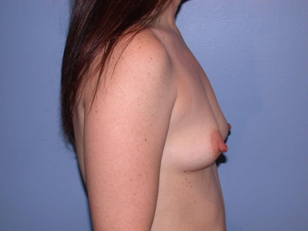Breast Augmentation Gallery - Patient 4757581 - Image 3