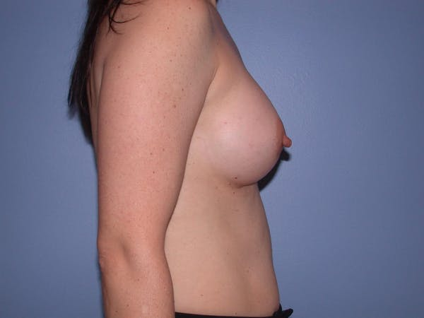 Breast Augmentation Gallery - Patient 4757581 - Image 4
