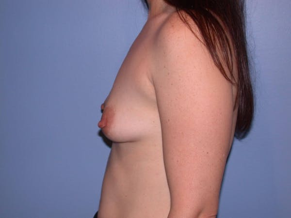 Breast Augmentation Gallery - Patient 4757581 - Image 5