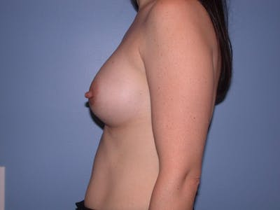 Breast Augmentation Gallery - Patient 4757581 - Image 6