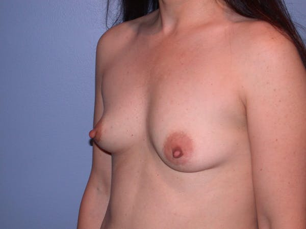 Breast Augmentation Gallery - Patient 4757581 - Image 7