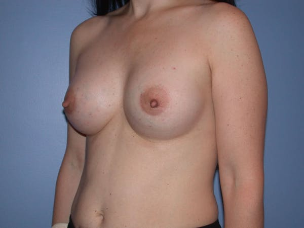 Breast Augmentation Gallery - Patient 4757581 - Image 8