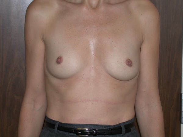 Breast Augmentation Gallery - Patient 4757589 - Image 1