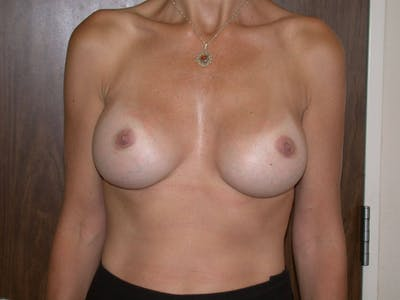 Breast Augmentation Gallery - Patient 4757589 - Image 2