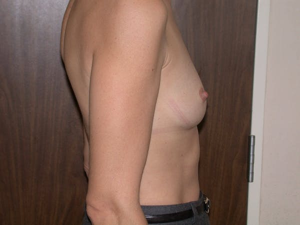 Breast Augmentation Gallery - Patient 4757589 - Image 3