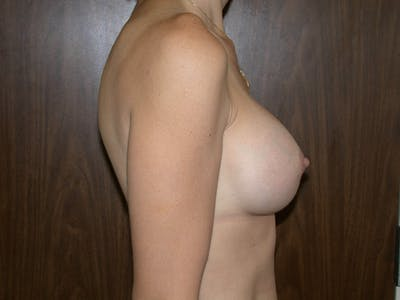 Breast Augmentation Gallery - Patient 4757589 - Image 4