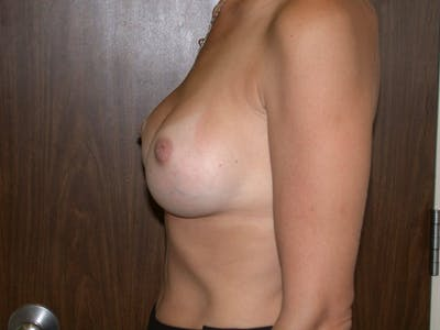 Breast Augmentation Gallery - Patient 4757589 - Image 6