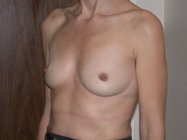 Breast Augmentation Gallery - Patient 4757589 - Image 7