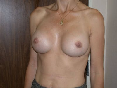 Breast Augmentation Gallery - Patient 4757589 - Image 8