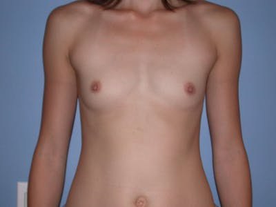 Breast Augmentation Gallery - Patient 4757599 - Image 39