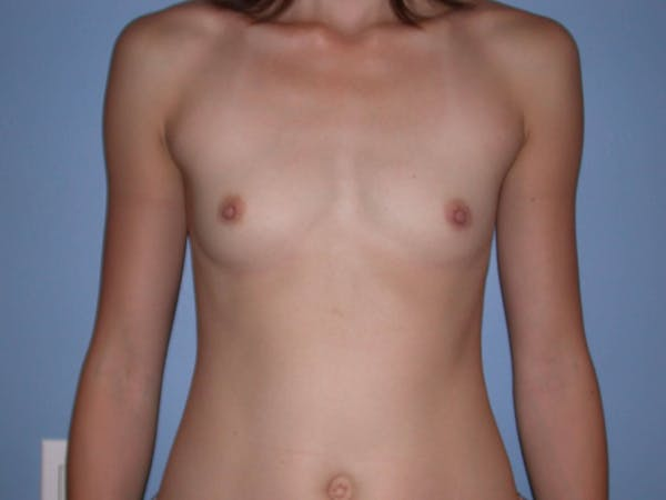 Breast Augmentation Gallery - Patient 4757599 - Image 1