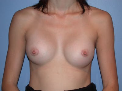Breast Augmentation Gallery - Patient 4757599 - Image 2