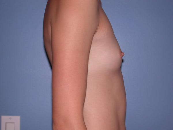Breast Augmentation Gallery - Patient 4757599 - Image 3