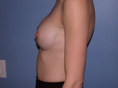 Breast Augmentation Gallery - Patient 4757599 - Image 6