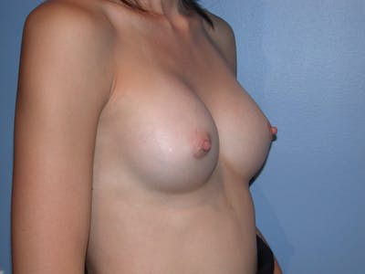 Breast Augmentation Gallery - Patient 4757599 - Image 8