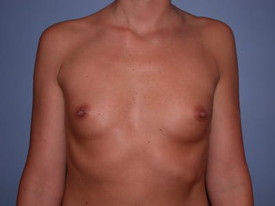 Breast Augmentation Gallery - Patient 4757603 - Image 40