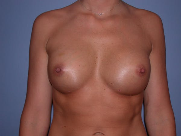 Breast Augmentation Gallery - Patient 4757603 - Image 2