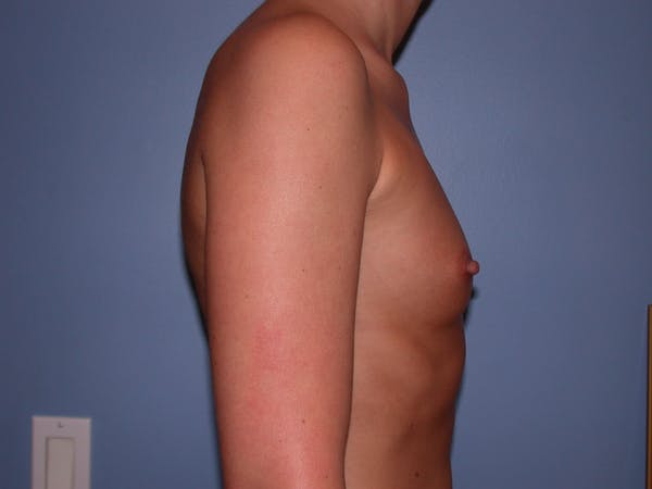 Breast Augmentation Gallery - Patient 4757603 - Image 3