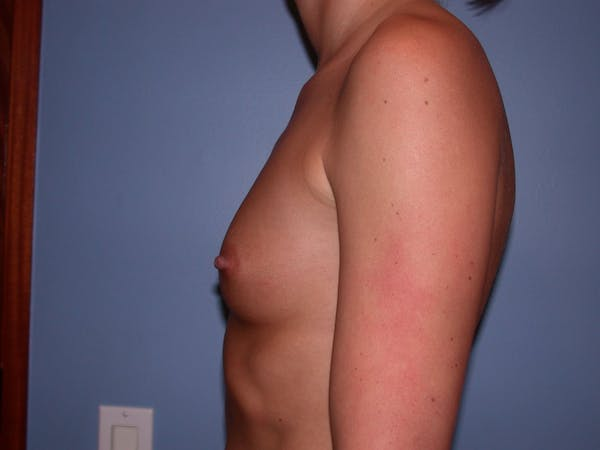 Breast Augmentation Gallery - Patient 4757603 - Image 5