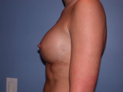 Breast Augmentation Gallery - Patient 4757603 - Image 6