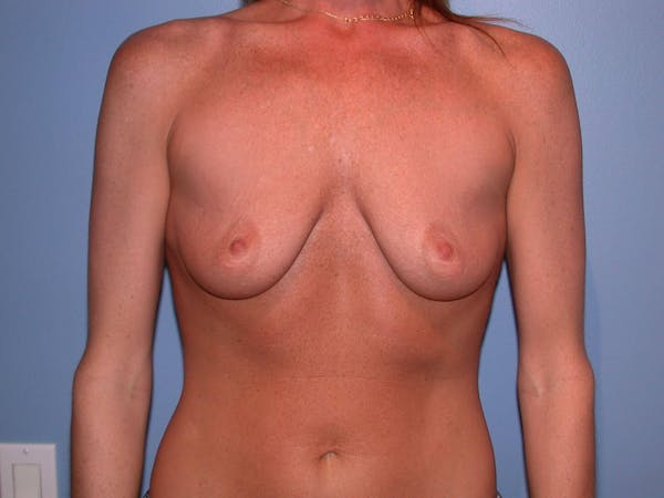 Breast Augmentation Gallery - Patient 4757607 - Image 1