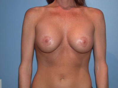 Breast Augmentation Gallery - Patient 4757607 - Image 2