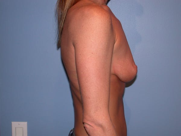Breast Augmentation Gallery - Patient 4757607 - Image 3