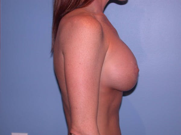 Breast Augmentation Gallery - Patient 4757607 - Image 4