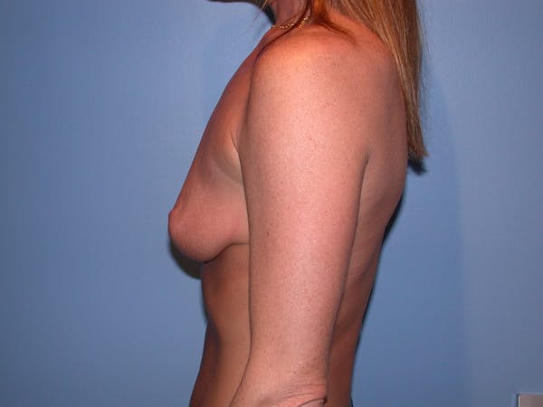 Breast Augmentation Gallery - Patient 4757607 - Image 5