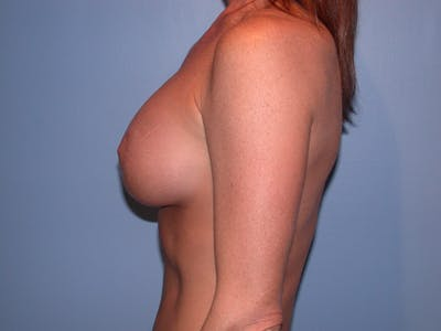 Breast Augmentation Gallery - Patient 4757607 - Image 6