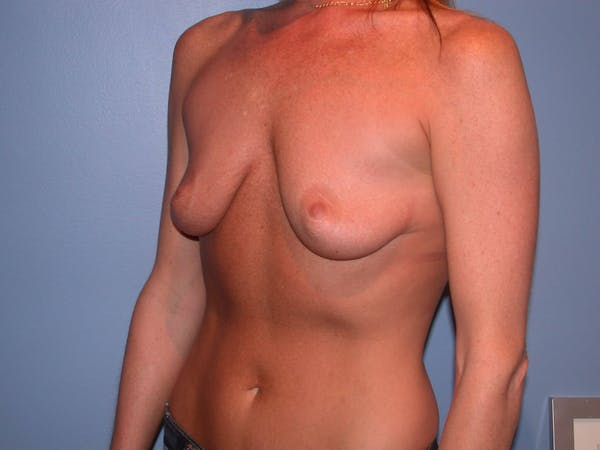 Breast Augmentation Gallery - Patient 4757607 - Image 7