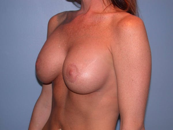 Breast Augmentation Gallery - Patient 4757607 - Image 8