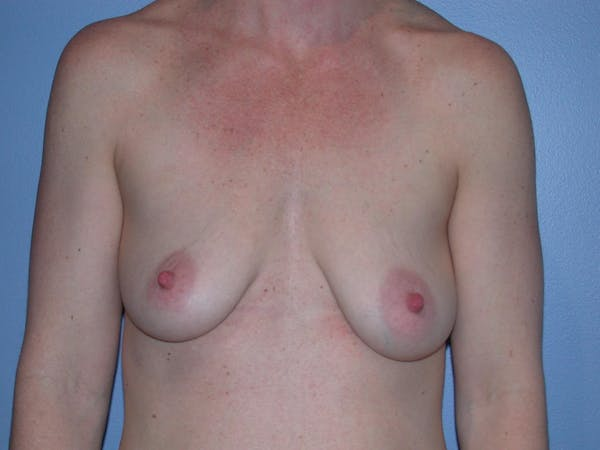 Breast Augmentation Gallery - Patient 4757611 - Image 1
