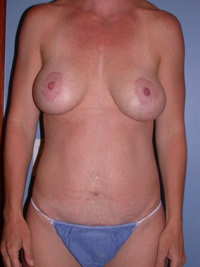 Breast Augmentation Gallery - Patient 4757611 - Image 2
