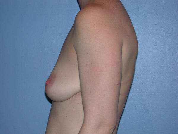 Breast Augmentation Gallery - Patient 4757611 - Image 3