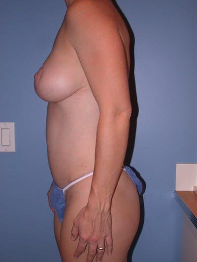 Breast Augmentation Gallery - Patient 4757611 - Image 4