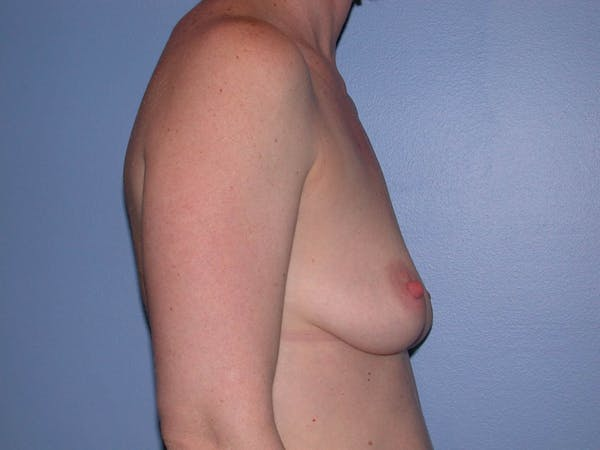 Breast Augmentation Gallery - Patient 4757611 - Image 5